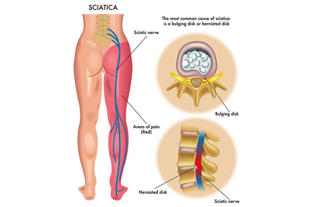 sciatica-infographic-back-pain--720x480